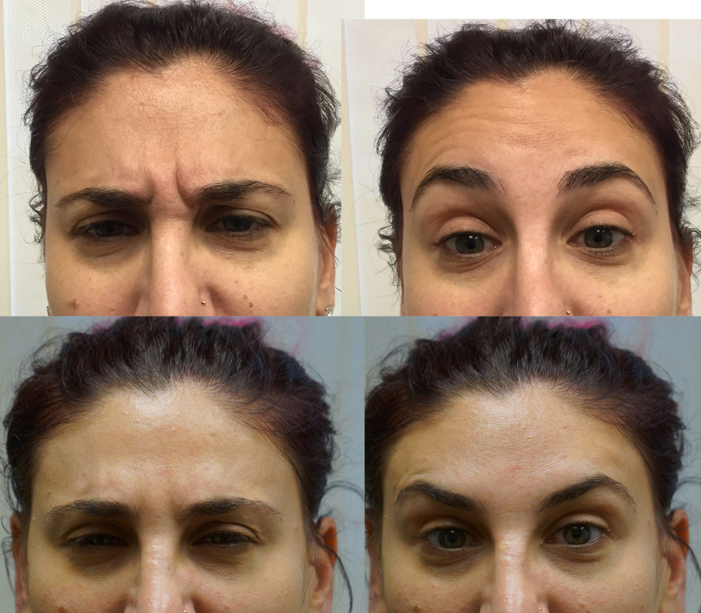 Botox Treatments for Frown Lines Boynton Beach - Botox Treatment Florida - Boynton Laser Dental Center