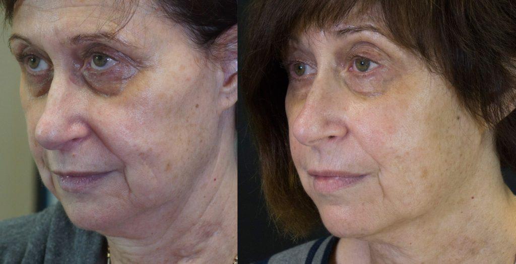 Physical Attractiveness and Oral Facial Enhancement Boynton Beach - Boynton Laser Dental Center