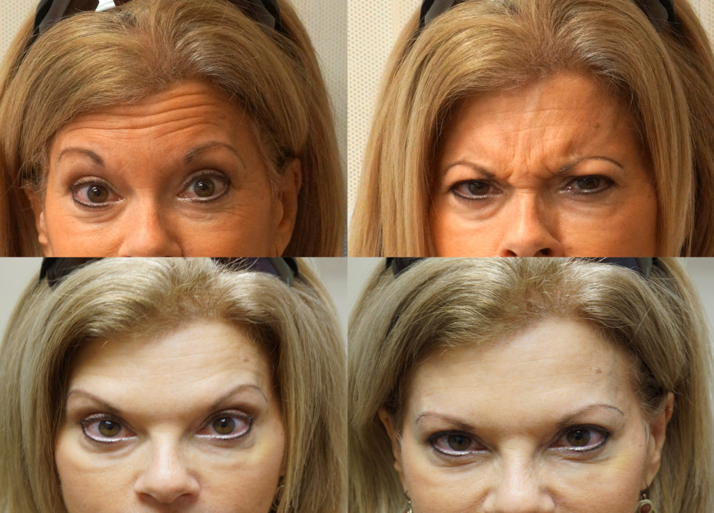 BOTOX® Boynton Beach - Botox Treatment Florida - Boynton Laser Dental Center