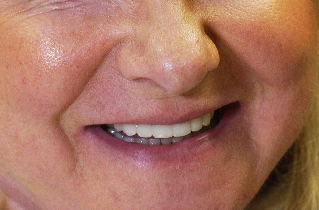 Cosmetic crowns Boynton Beach - Porcelain Dental Crowns   Boynton Laser Dental Center