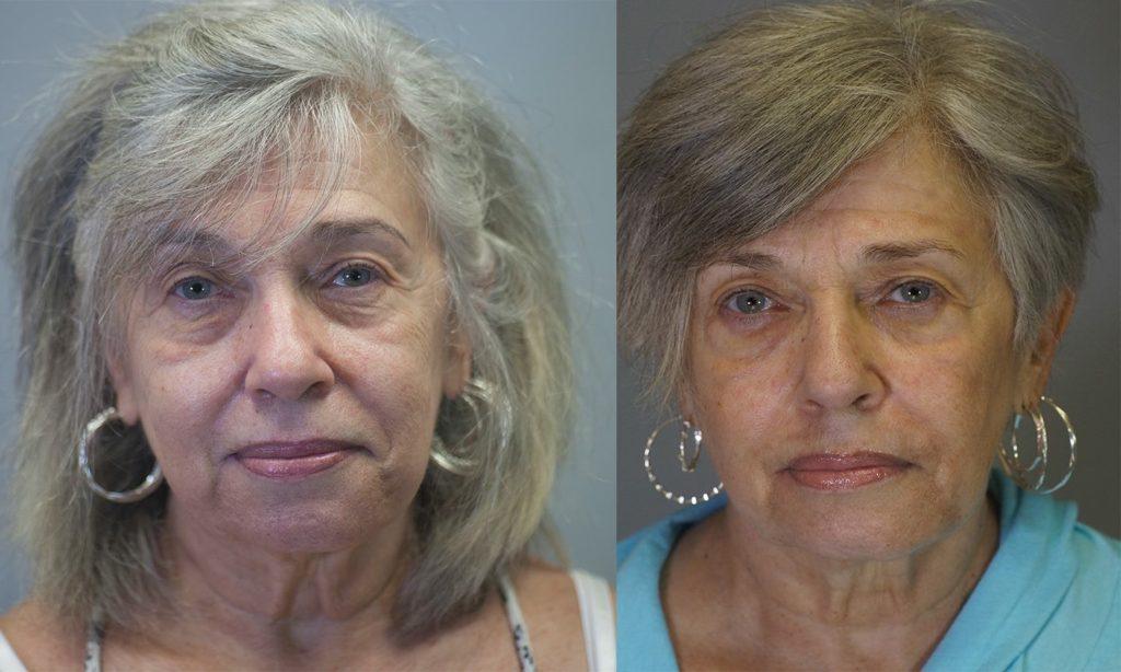 Oral Facial Enhancement Boynton Beach - Boynton Laser Dental Center