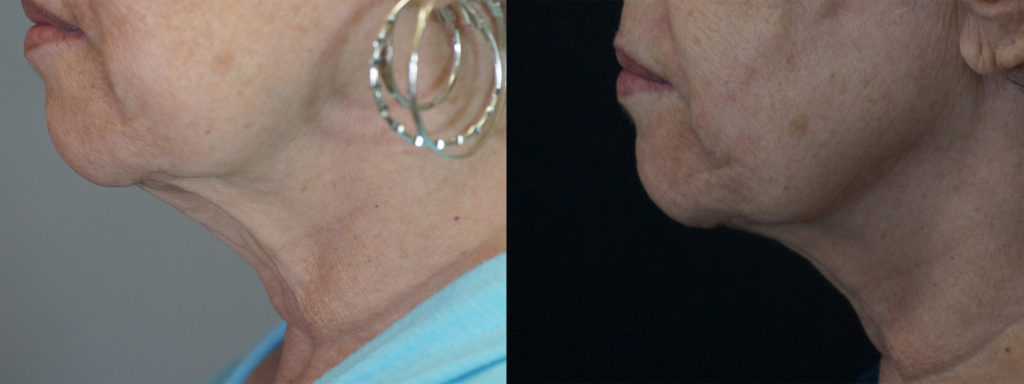 Dental necklace Boynton Beach - NECKLASE Florida - Boynton Laser Dental Center