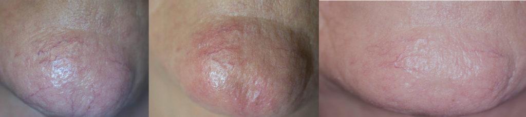 Spider Vein chin Treatment Boynton Beach - Facial Veins Florida   Boynton Laser Dental Center